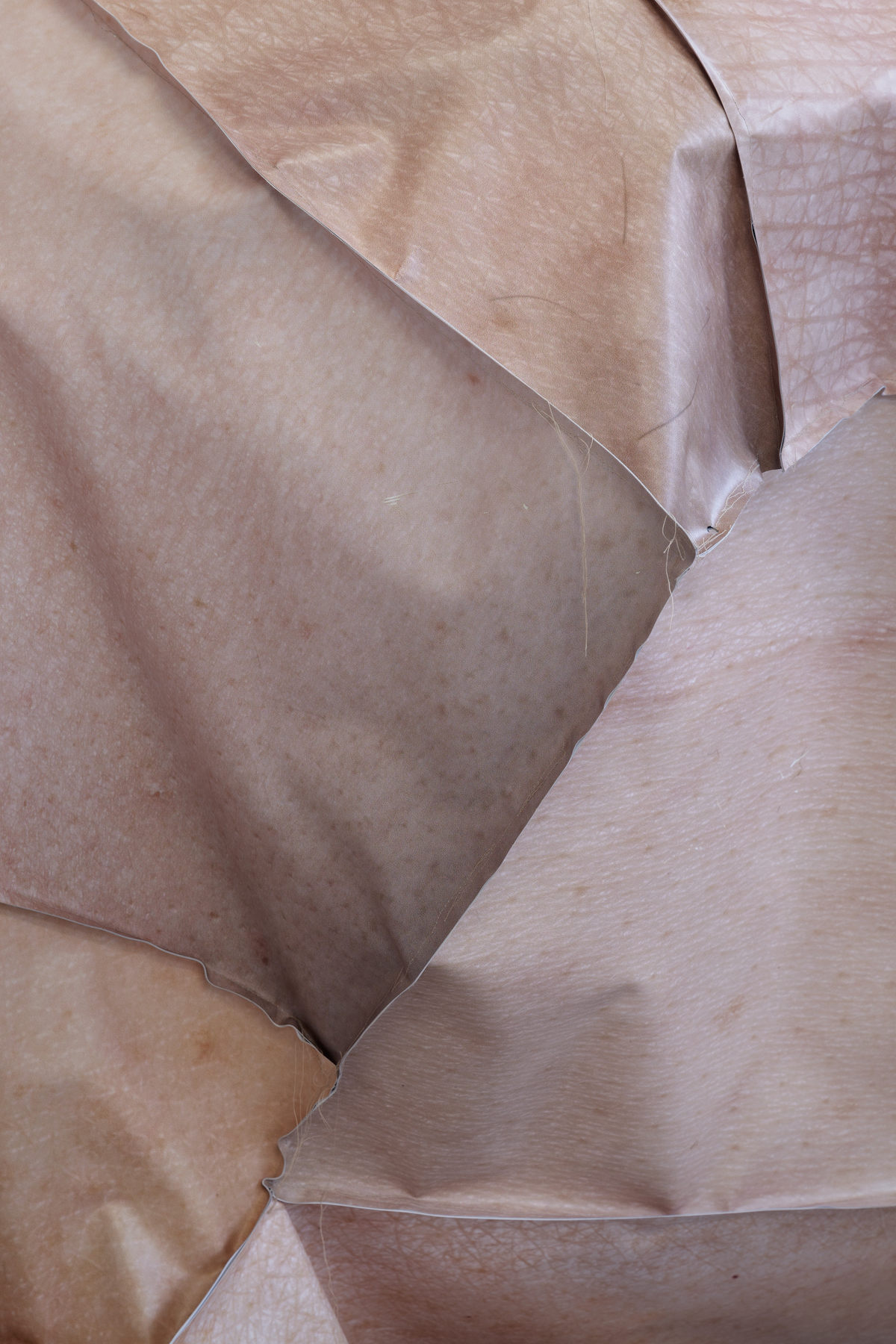 Condition-Symbiosis close up skin Louise sparre